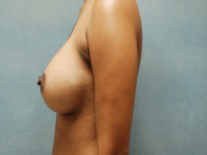 Manhattan Breast Augmentation after 6
